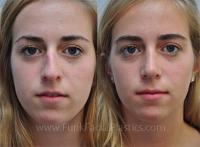 Broken Nose Rhinoplasty Teen Rhinoplasty Nose Jobs