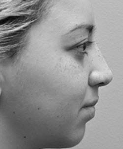 Houston Non-Surgical Rhinoplasty Before & Afters